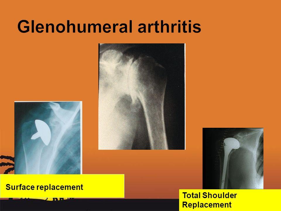 Glenohumeral arthritis