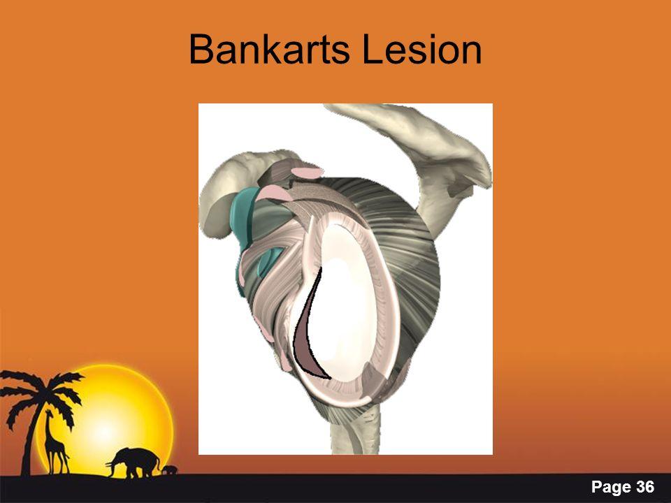 Bankarts Lesion