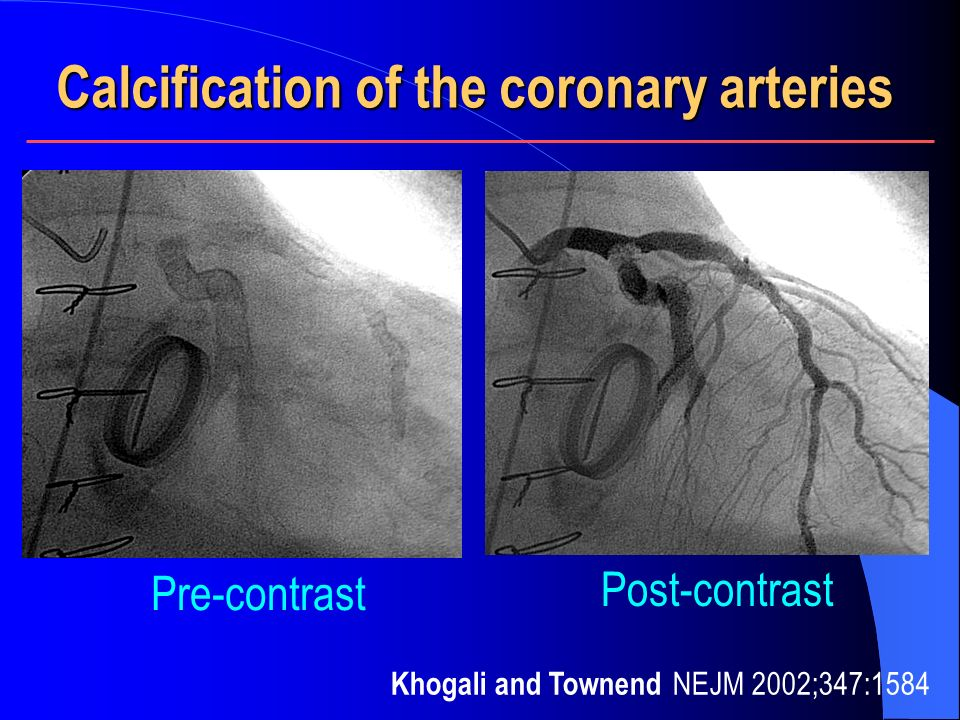 Calcification of the coronary arteries
