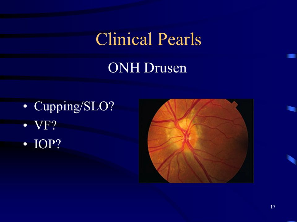 Clinical Pearls ONH Drusen Cupping/SLO VF IOP