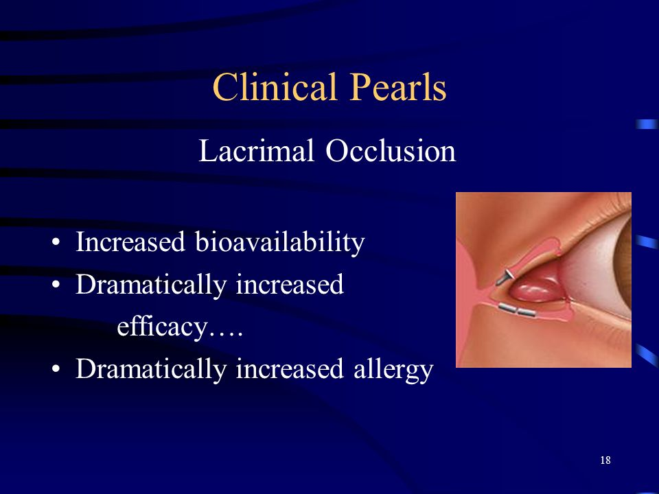 Clinical Pearls Lacrimal Occlusion Increased bioavailability