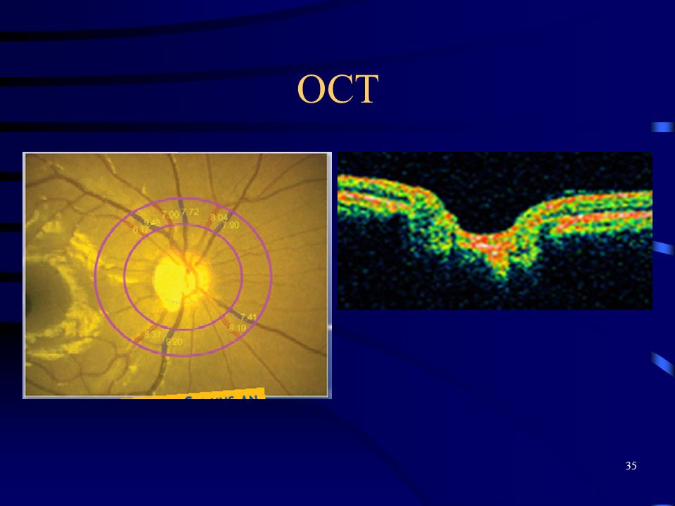 OCT Pigmentary crescent, myopic crescent can pollute data