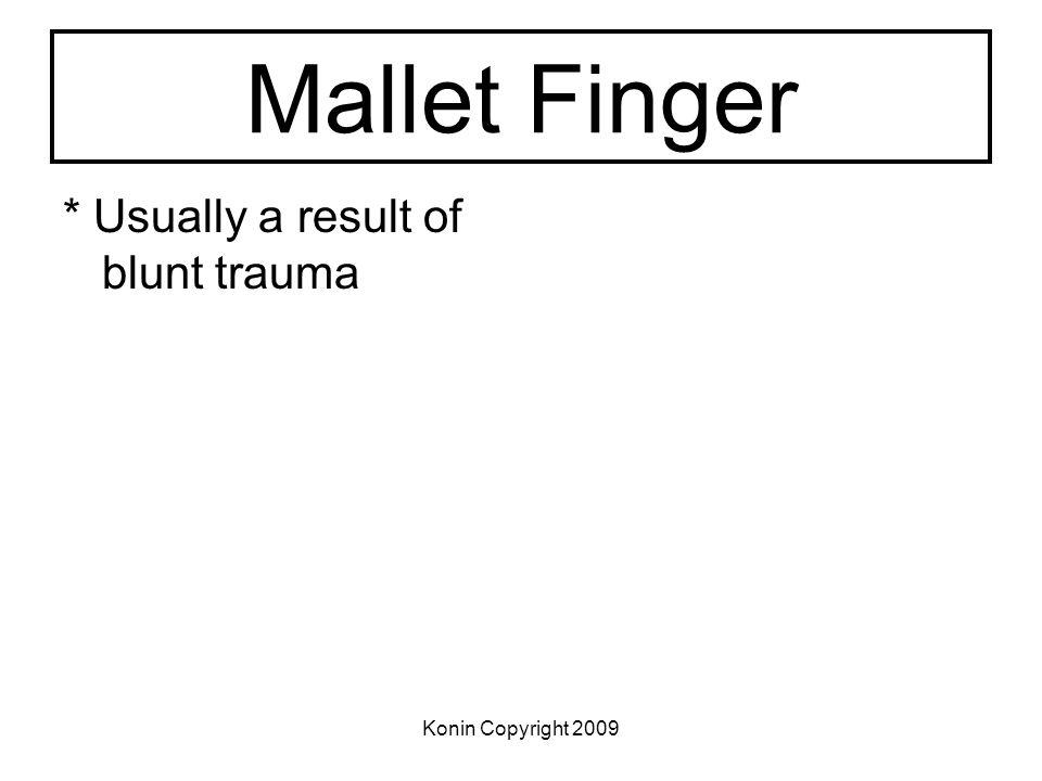Mallet Finger * Usually a result of blunt trauma Konin Copyright 2009