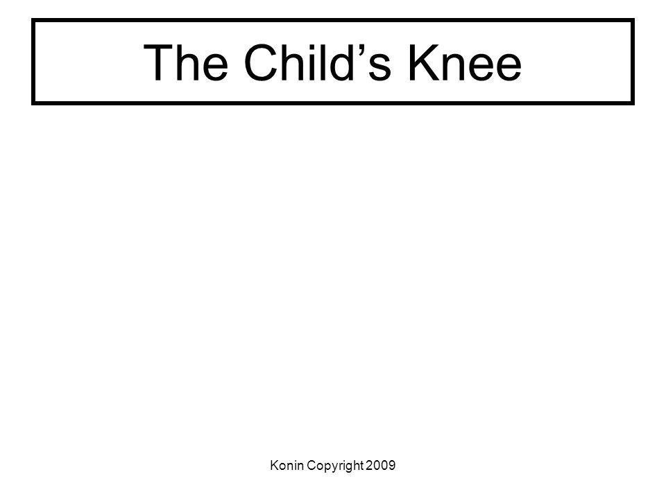 The Child's Knee Konin Copyright 2009