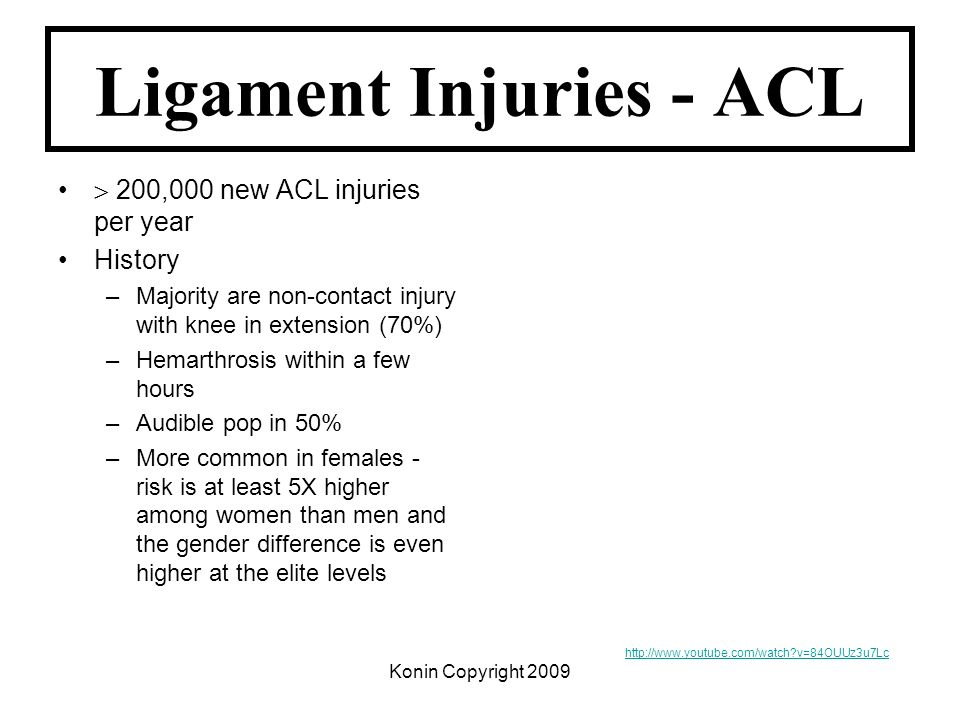 Ligament Injuries - ACL