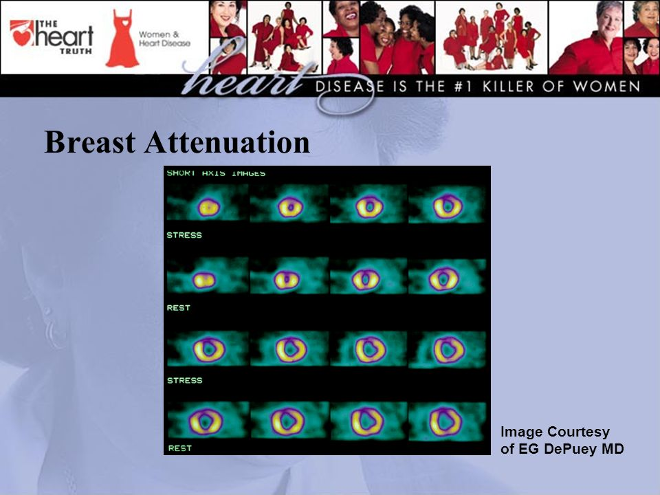 Breast Attenuation Image Courtesy of EG DePuey MD