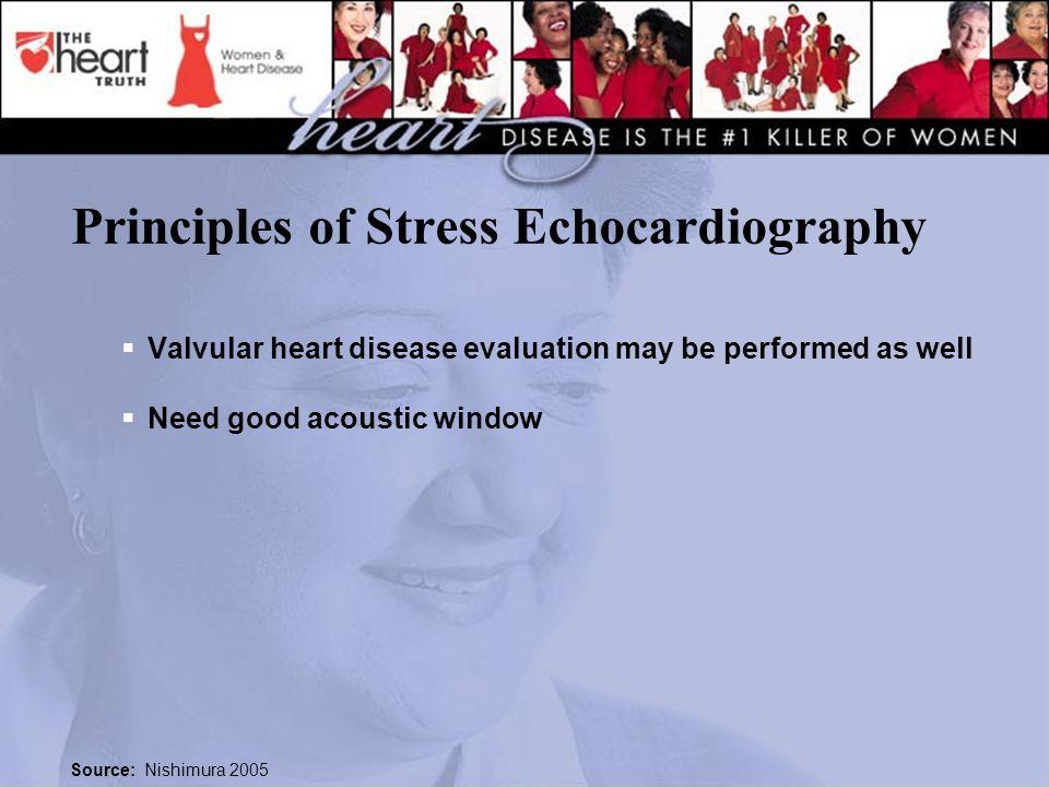 Principles of Stress Echocardiography