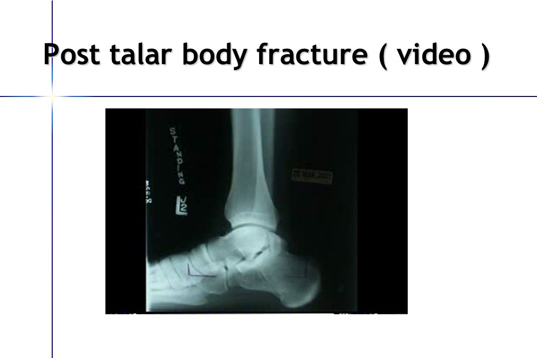 Post talar body fracture ( video )