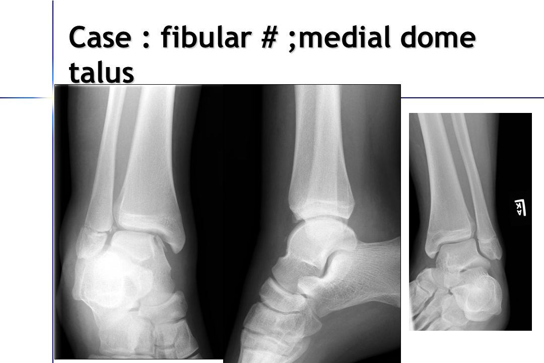 Case : fibular # ;medial dome talus