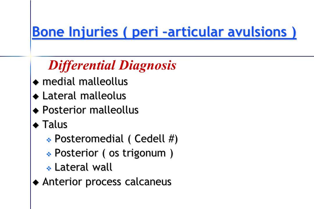 Bone Injuries ( peri –articular avulsions )
