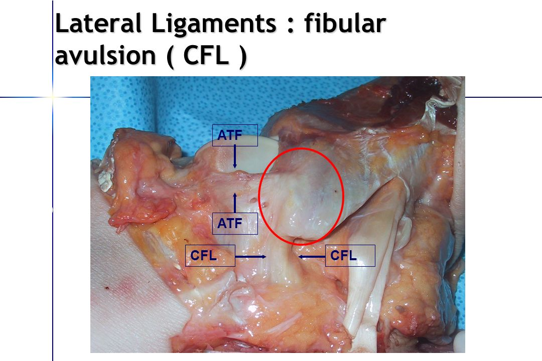 Lateral Ligaments : fibular avulsion ( CFL )