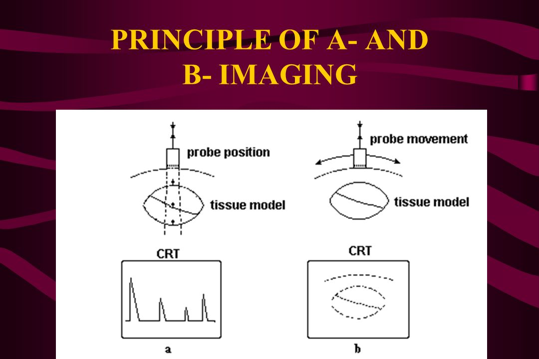 PRINCIPLE OF A- AND B- IMAGING