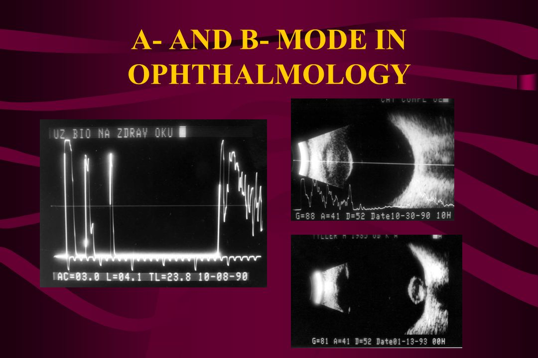 A- AND B- MODE IN OPHTHALMOLOGY