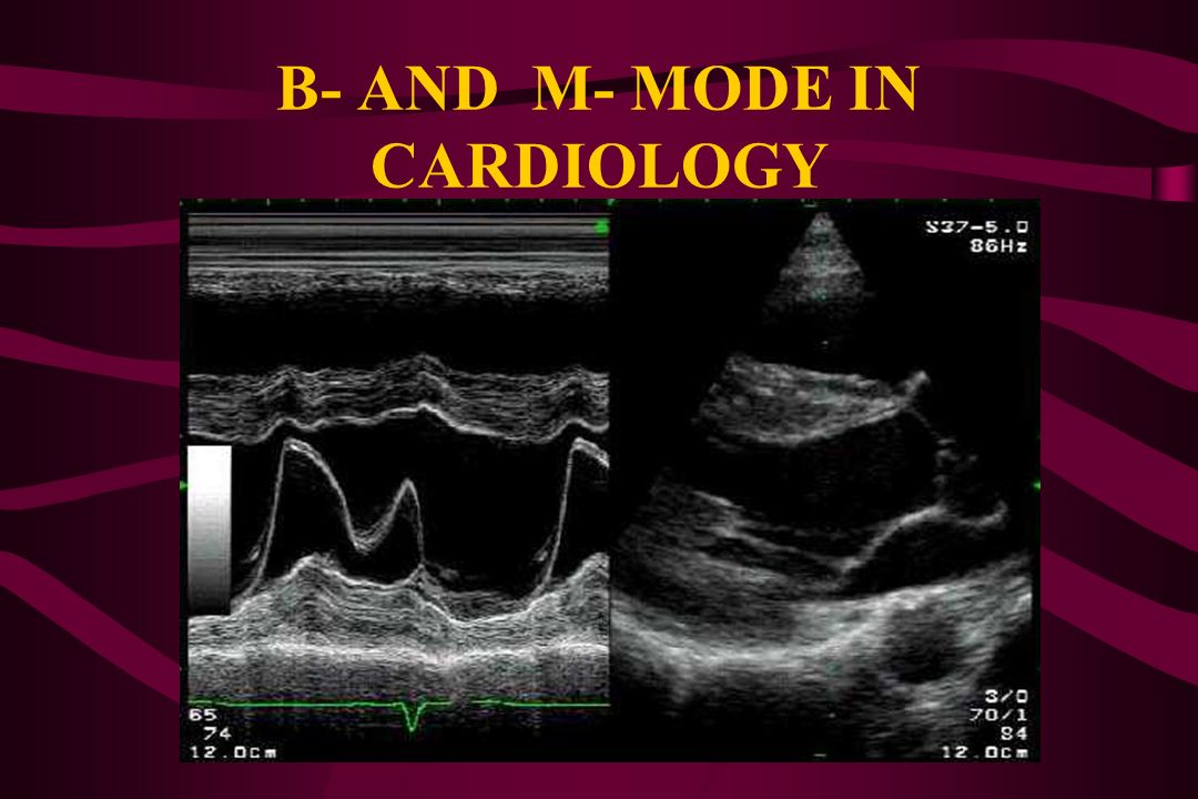 B- AND M- MODE IN CARDIOLOGY