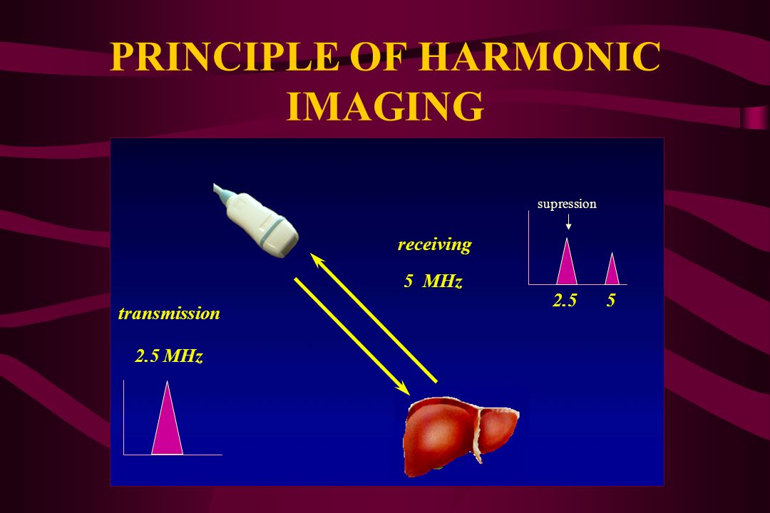 PRINCIPLE OF HARMONIC IMAGING