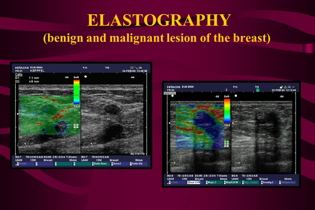 ELASTOGRAPHY (benign and malignant lesion of the breast)