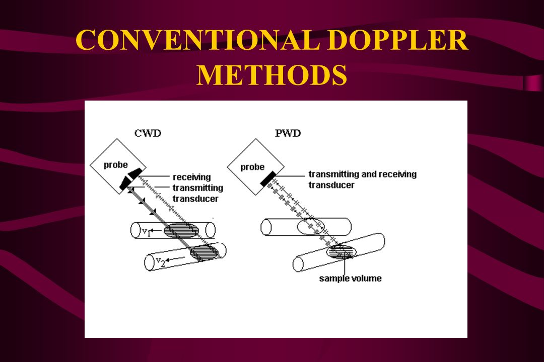 CONVENTIONAL DOPPLER METHODS