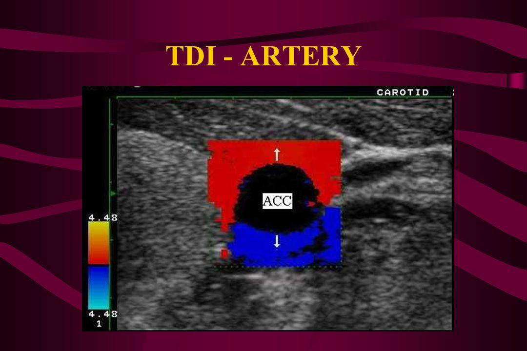 TDI - ARTERY