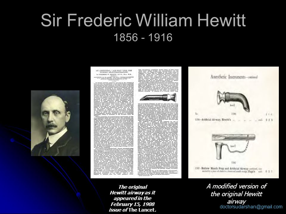 Sir Frederic William Hewitt 1856 - 1916