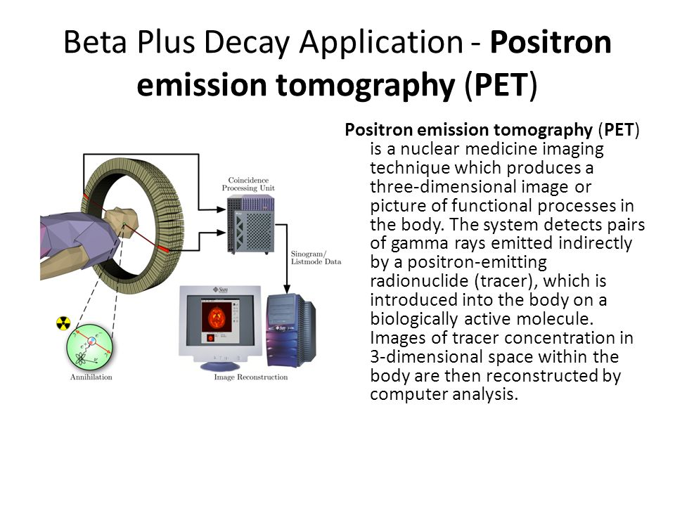 Beta Plus Decay Application - Positron emission tomography (PET)