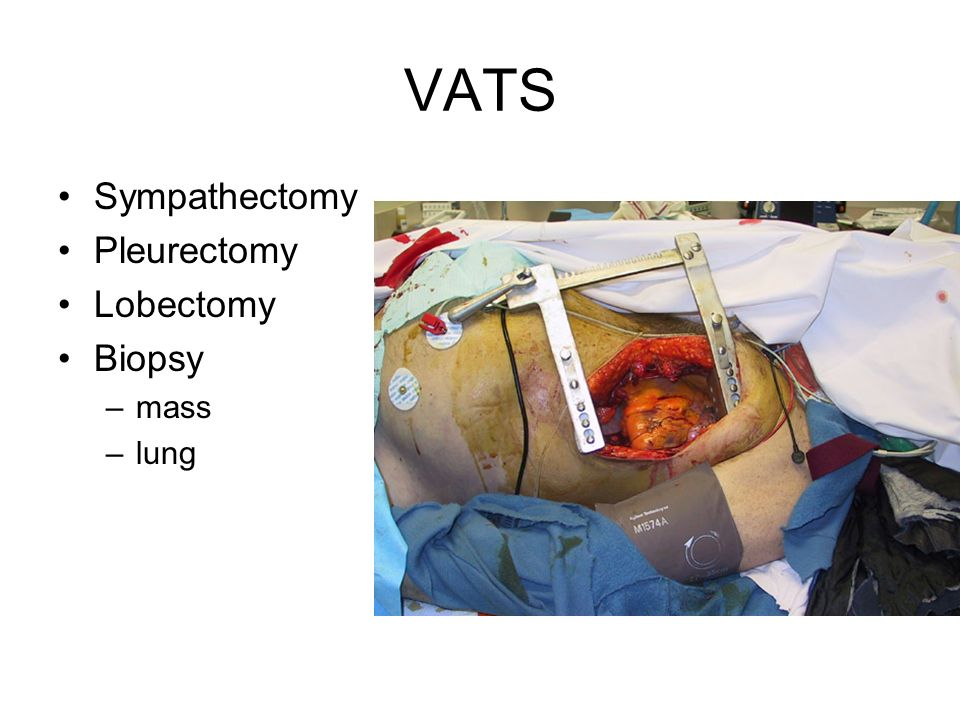 VATS Sympathectomy Pleurectomy Lobectomy Biopsy mass lung