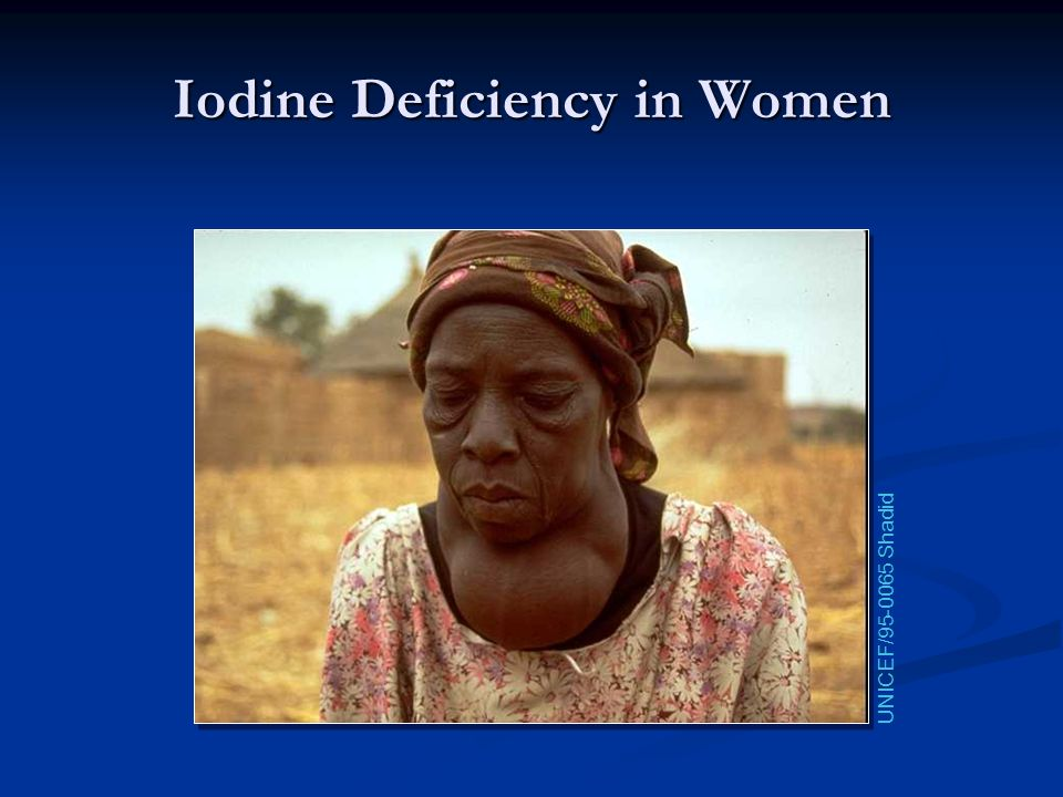 Iodine Deficiency in Women
