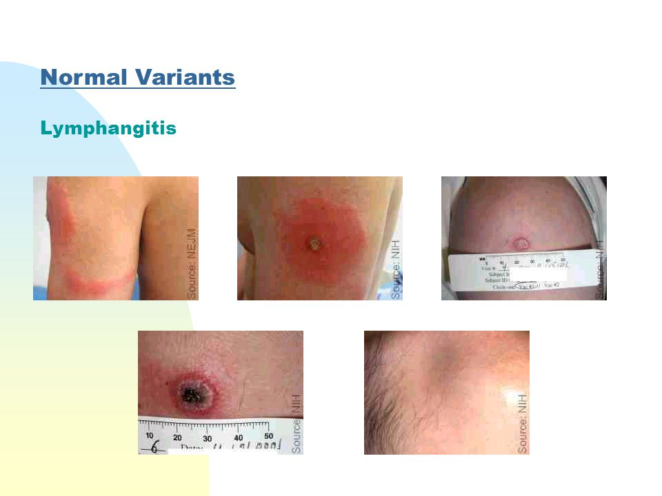 Normal Variants Lymphangitis