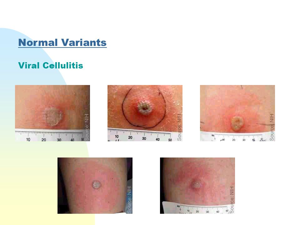Normal Variants Viral Cellulitis