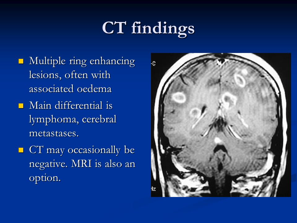 CT findings Multiple ring enhancing lesions, often with associated oedema. Main differential is lymphoma, cerebral metastases.