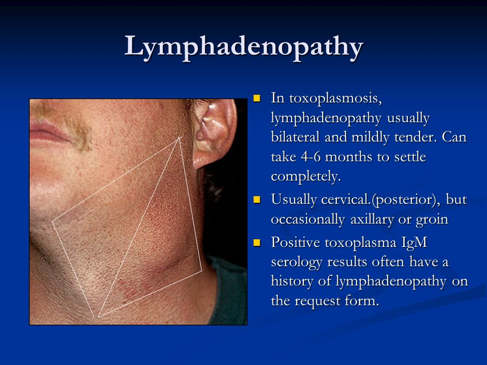 Lymphadenopathy In toxoplasmosis, lymphadenopathy usually bilateral and mildly tender. Can take 4-6 months to settle completely.