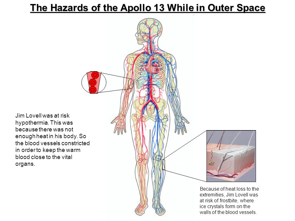 The Hazards of the Apollo 13 While in Outer Space