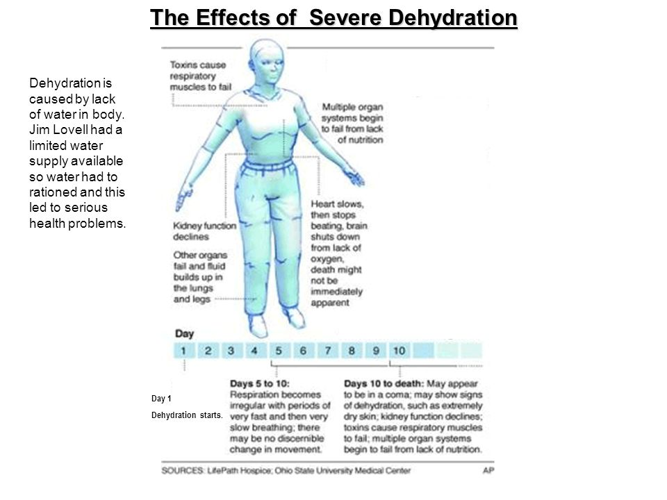 The Effects of Severe Dehydration