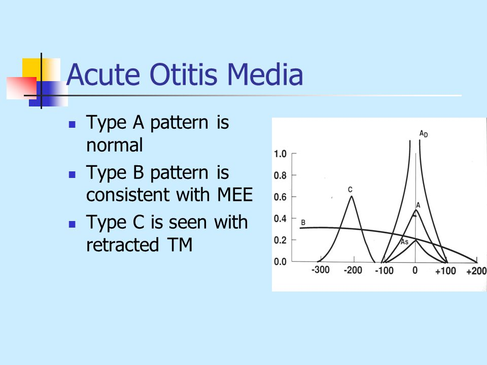 Acute Otitis Media Type A pattern is normal