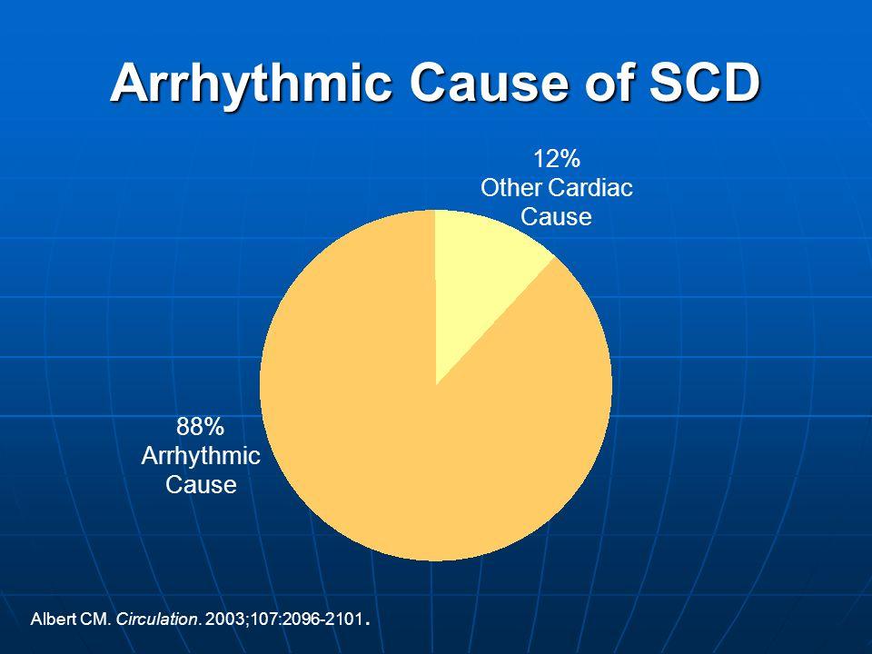 Arrhythmic Cause of SCD
