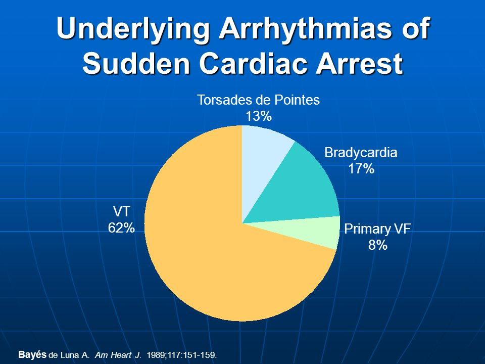 Underlying Arrhythmias of Sudden Cardiac Arrest
