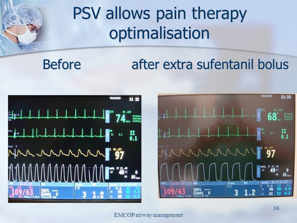 PSV allows pain therapy optimalisation