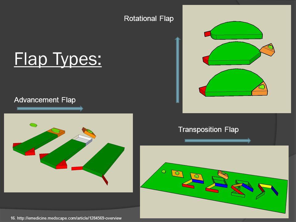 Flap Types: Rotational Flap Advancement Flap Transposition Flap