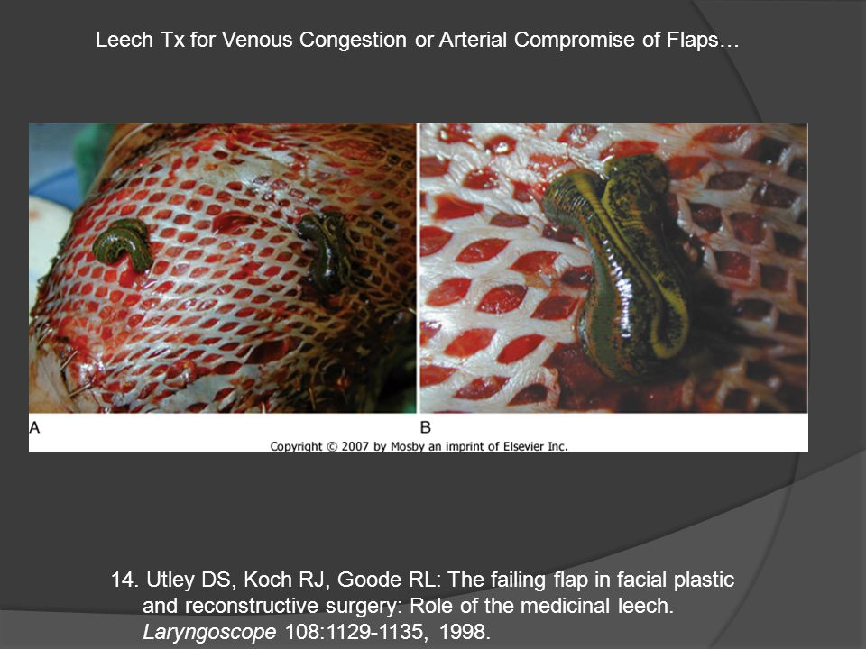 Leech Tx for Venous Congestion or Arterial Compromise of Flaps…