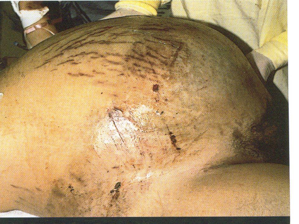 Blunt Injury Abdomen