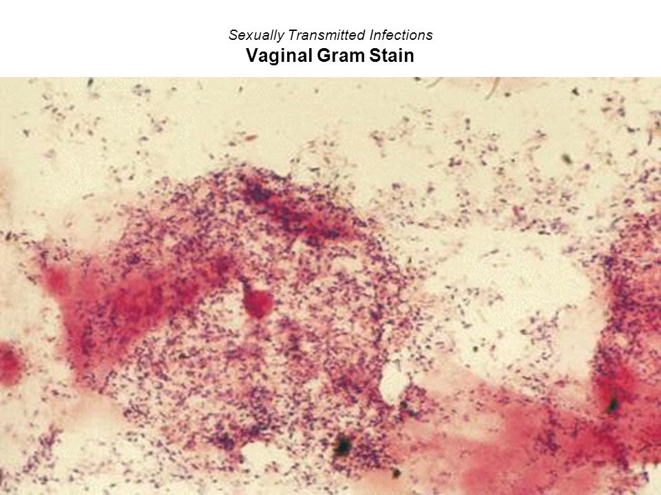 Sexually Transmitted Infections Vaginal Gram Stain