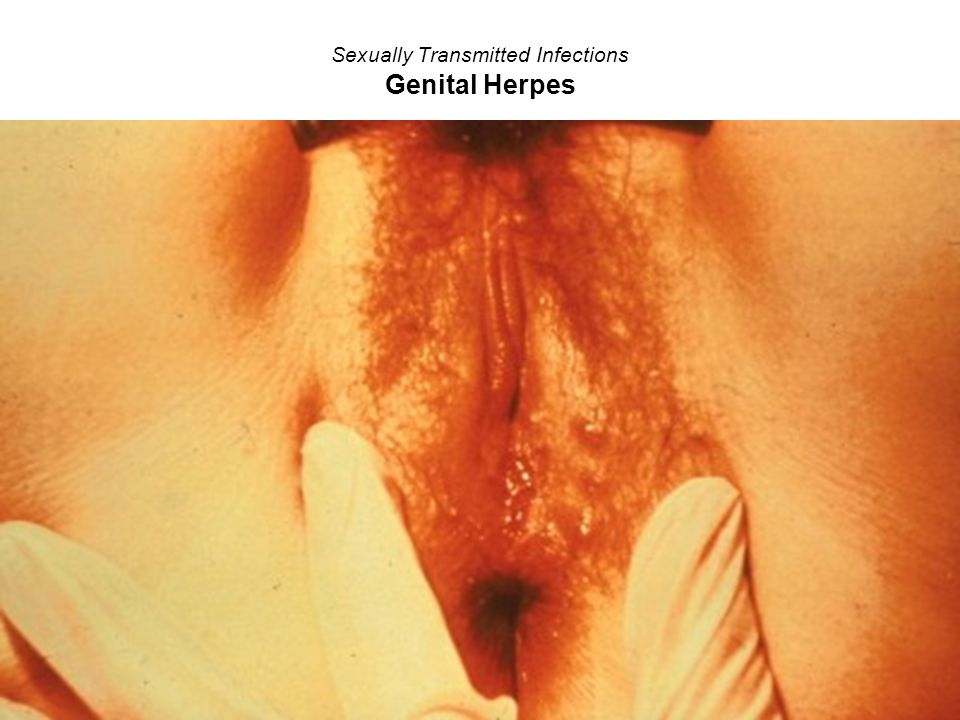 Sexually Transmitted Infections Genital Herpes