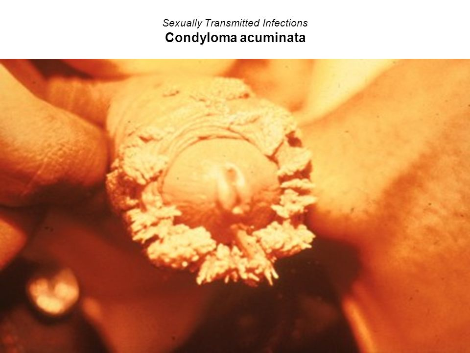 Sexually Transmitted Infections Condyloma acuminata