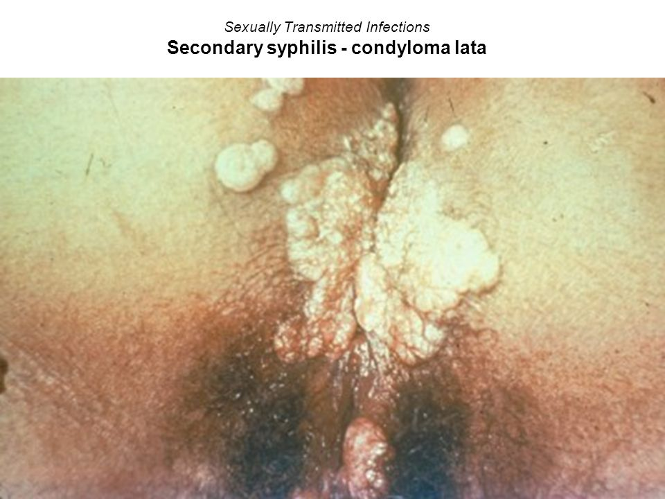 Sexually Transmitted Infections Secondary syphilis - condyloma lata