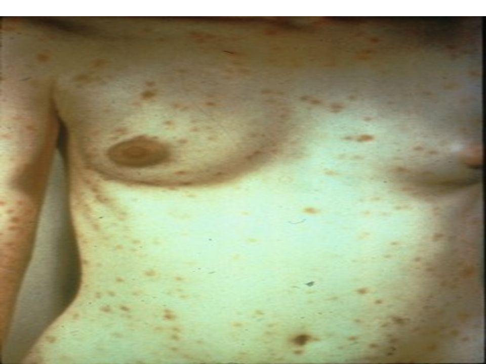 Secondary syphilis - papulosquamous rash