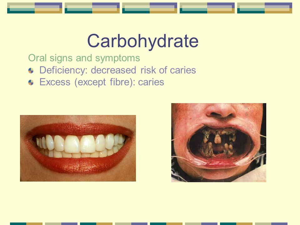 Carbohydrate Oral signs and symptoms