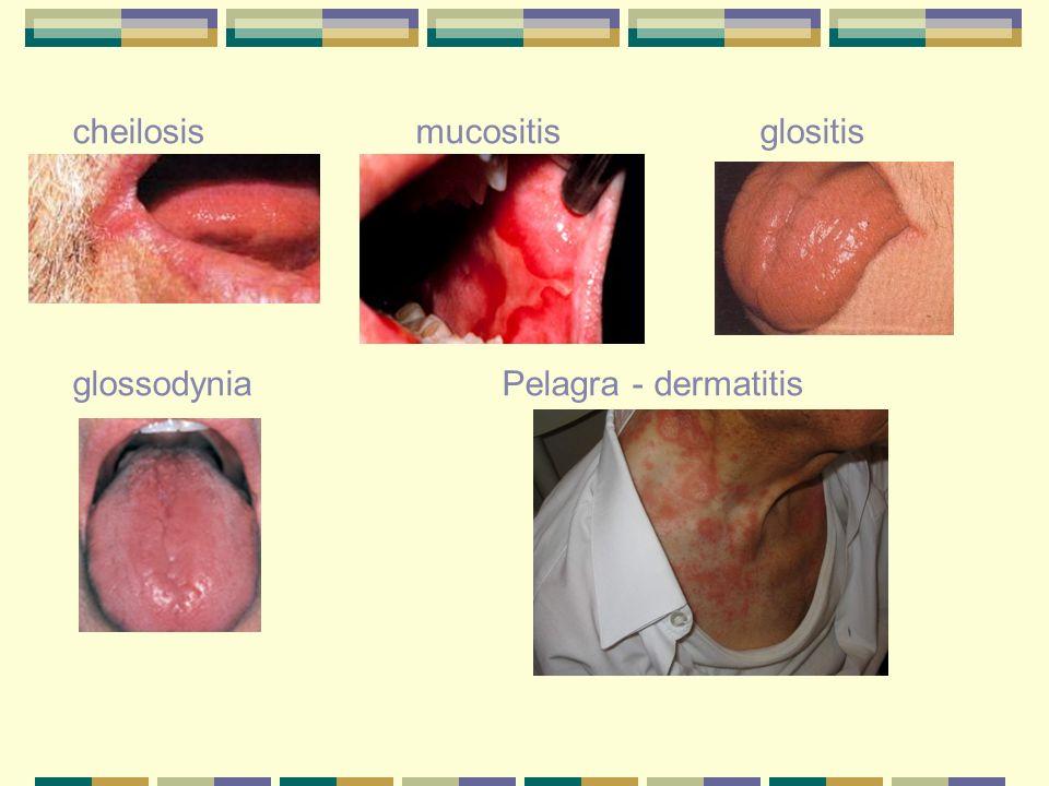 cheilosis mucositis glositis