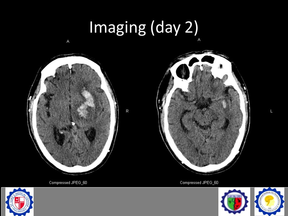 Imaging (day 2)