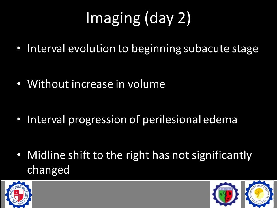 Imaging (day 2) Interval evolution to beginning subacute stage