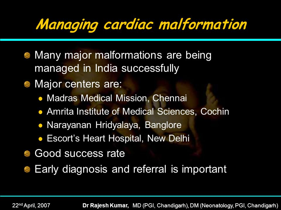 Managing cardiac malformation