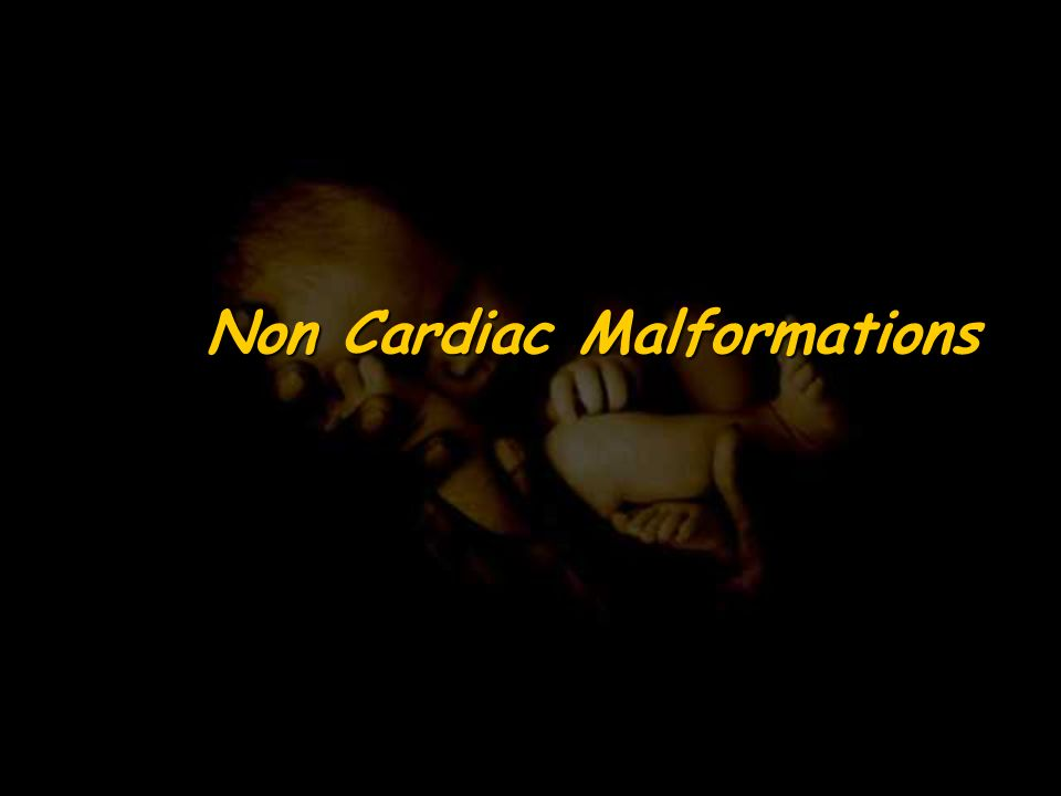 Non Cardiac Malformations